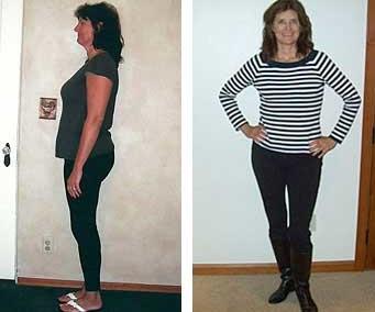 Weight Loss Medical Miracle!